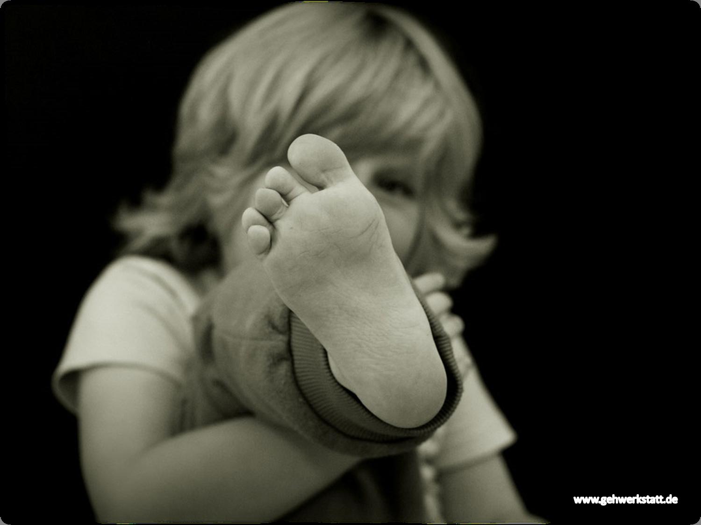 Fußfehlstellungen bei Kindern
