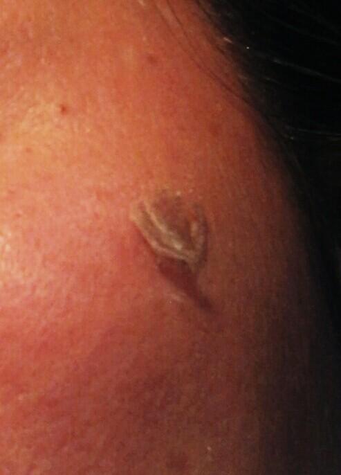 2回目剥離後にシミ部分の厚い剥離