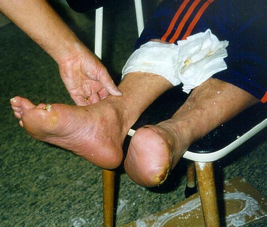 Vorfußamputation und Amputation der großen Zehe