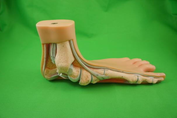 Fußmodell Plattfuß
