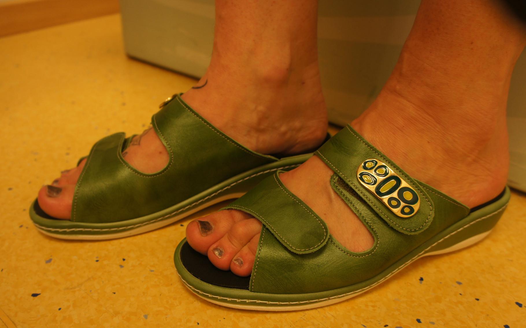 Fuß mit orthopädischer Maßeinlage