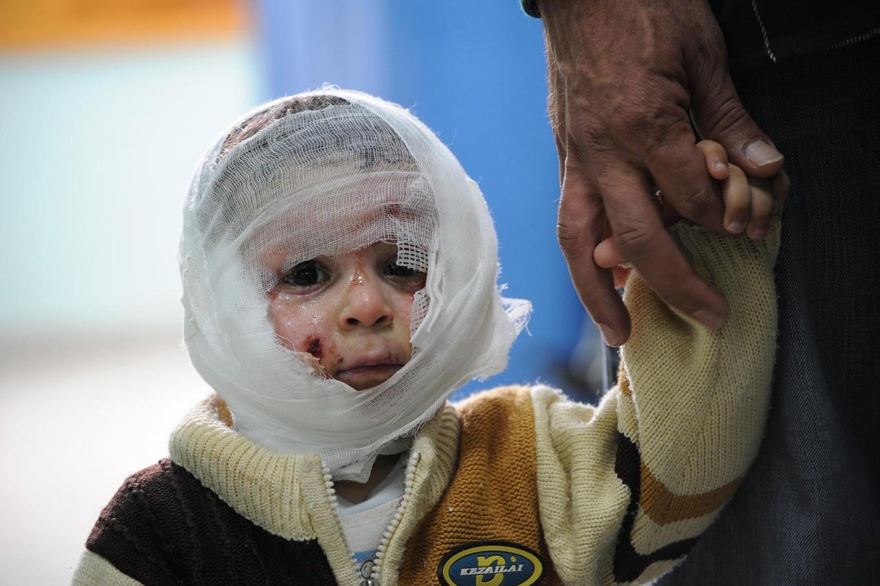 2008年暮れのガザ猛攻で頭を負傷した1歳8か月の子ども