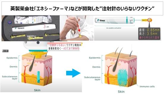 注射針のいらないワクチン開発(英製薬会社)