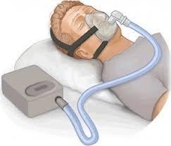 睡眠時無呼吸症候群・シーパップ