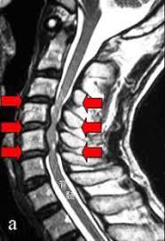 頸椎圧迫症