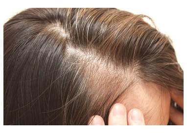 【ヒト幹細胞培養液で毛が生えるメカニズム】発毛ラボ和歌山 ...