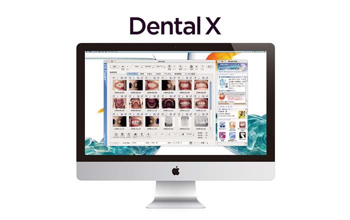 データ管理ソフト(Dental X)