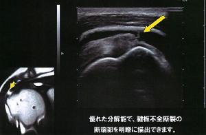肩の筋肉(腱板)の断裂がみられます。