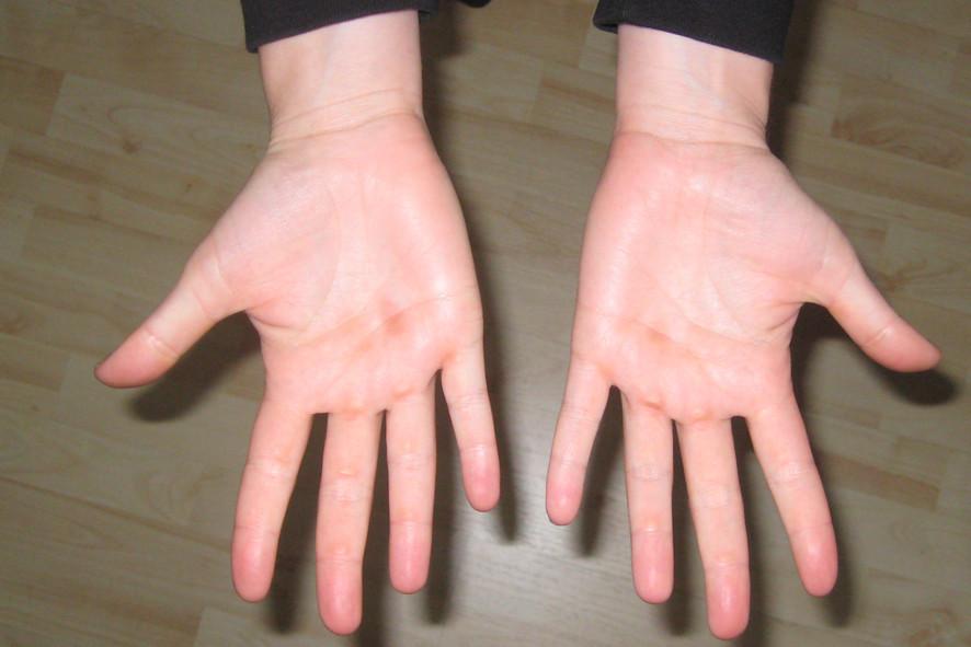 Inken's Hände nach der Tour de Lac Leman