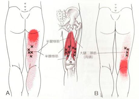 膝裏のトリガーポイント