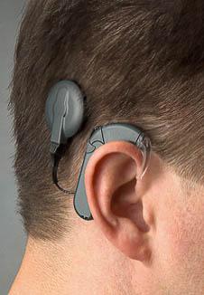 CI-Träger auch Hörgeräteträger mitCochlea Implantat am Ohr zum Hören