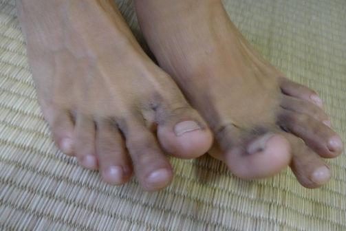 コジイチ登山後の足、毛が生えた?カビ?泥足です。