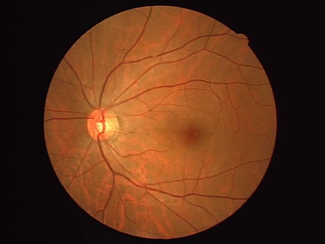 眼底診断でのAI技術活用について、