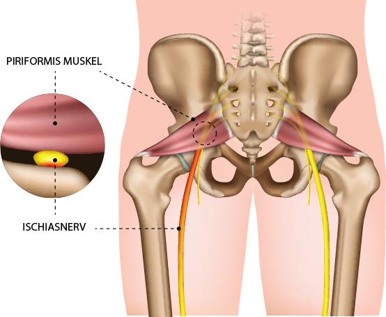 Piriformis-Syndrom (Gesäßschmerzen) – Dr. Matthias Marquardt