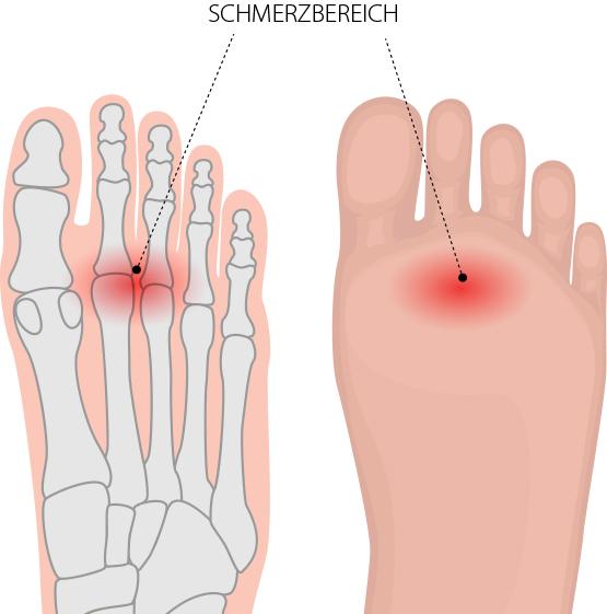 Spreizfuß, Mittelfußknochen – Dr. Matthias Marquardt