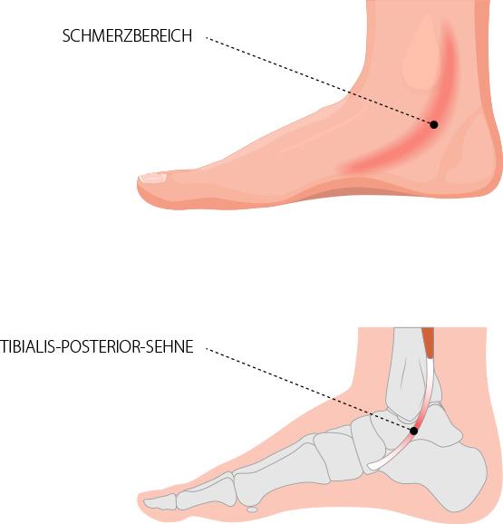 Sehnenscheidenentzündung des Innenknöchels, Tibialis Posterior – Dr. Matthias Marquardt