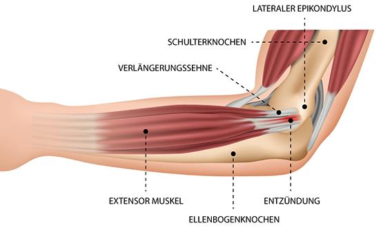Tennis-Ellenbogen (Epicondylitis humeri radialis) – Dr. Matthias Marquardt