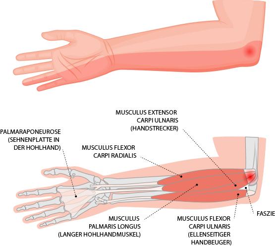Golfer-Ellenbogen (Epicondylitis humeri ulnaris) – Dr. Matthias Marquardt