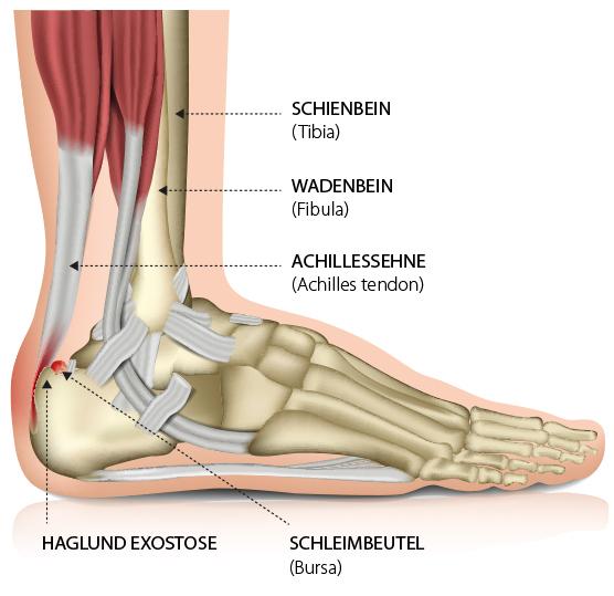 Achillessehne, Bursa, Schleimbeutelentzuendung, Achillobursitis, Haglund-Exostose – Dr. Marquardt