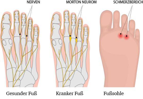 Morton Neurom – Dr. Matthias Marquardt