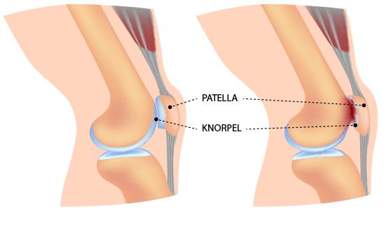 Kniegelenk, vorderer Knieschmerz – Dr. Matthias Marquardt