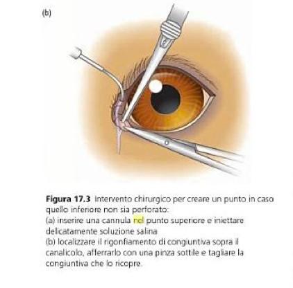 intervento chirurgico sull'occhio