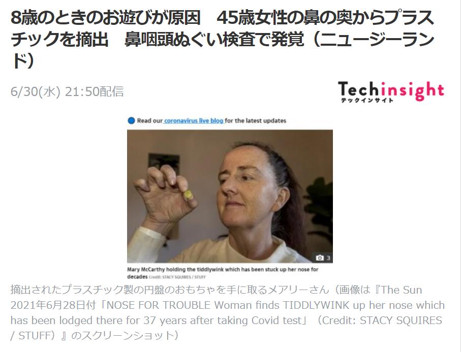8歳のときのお遊びが原因 45歳女性の鼻の奥からプラスチックを摘出 鼻咽頭ぬぐい検査で発覚(ニュージーランド)②