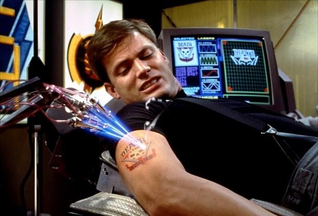détatouage au laser