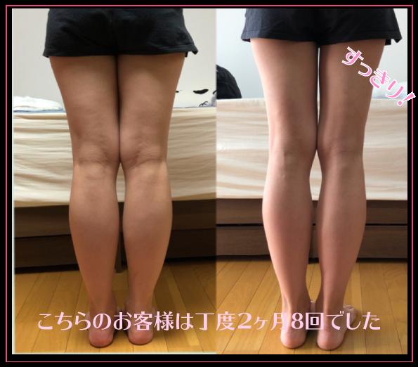 大阪下半身ダイエット専門整体サロンは、下半身ダイエットや痩身、脚痩せの強い味方!!