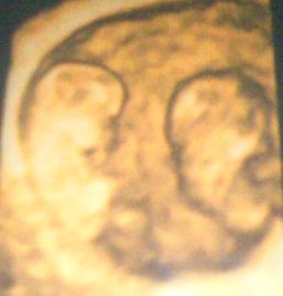 Ungeborene Zwillinge 11 Woche
