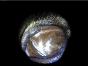 Bild: rechtes Auge vor OP