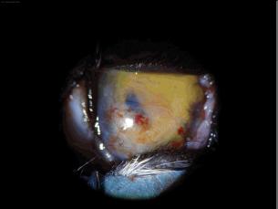 Bild: linkes Auge postoperativ