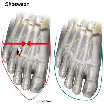 La principal causa del neuroma de Morton suele ser unas zapatillas inadecuadas a nuestros piés.