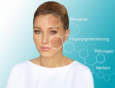 BB Glow gegen Melasmen, Hyperpigmentierung, Narben und Rötungen