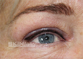 Permanent Make-up Lidstrich / © katja junius - skinlights.de