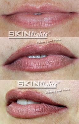 Permanent Make-up Lippen vorher / nachher Frau / © katja junius - skinlights.de