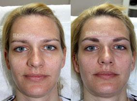 Permanent Make-up Augenbraue vorher / nachher Frau / © katja junius - skinlights.de
