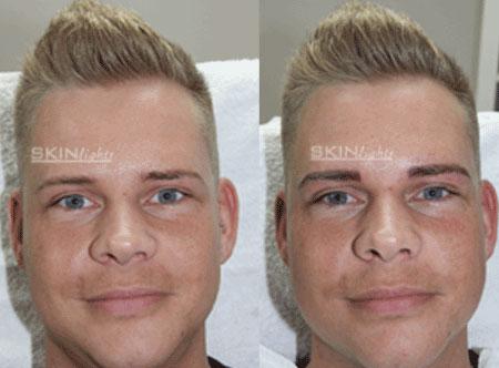 Permanent Make-up Augenbraue vorher / nachher Mann / © katja junius - skinlights.de