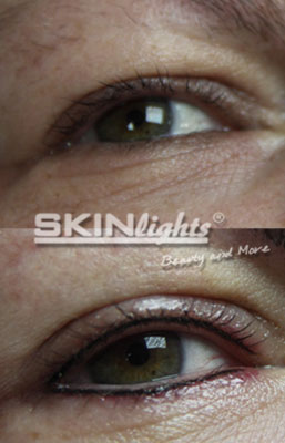 Permanent Make-up Lidstrich vorher / nachher / © katja junius - skinlights.de