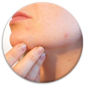Akne Behandlung