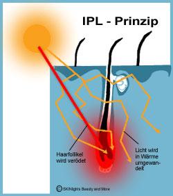 Haarwachstumsphasen und das IPL Prinzip