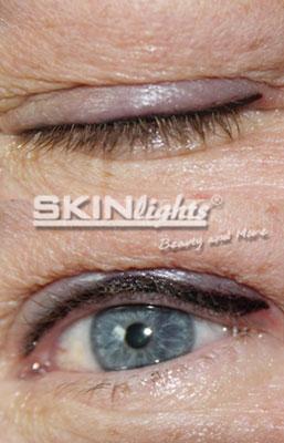 Permanent Make-up Lidstrich vorher / nachher / © katja junius - skinlights.de