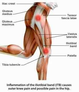 syndrome de l'essuie-glace , bandelette ilio tibiale , TFL , bandelette de Maissiat