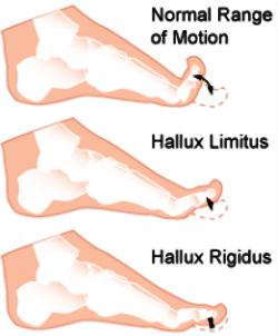 hallus rigidus, limits, pathologie du 1er rayon, douleur gros orteil