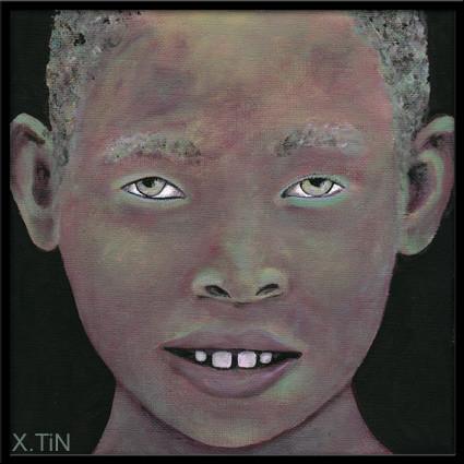 """""""Albin est né d'une drôle de couleur, mais il s'en fout il a le dents du bonheur"""" (20x20cm)"""