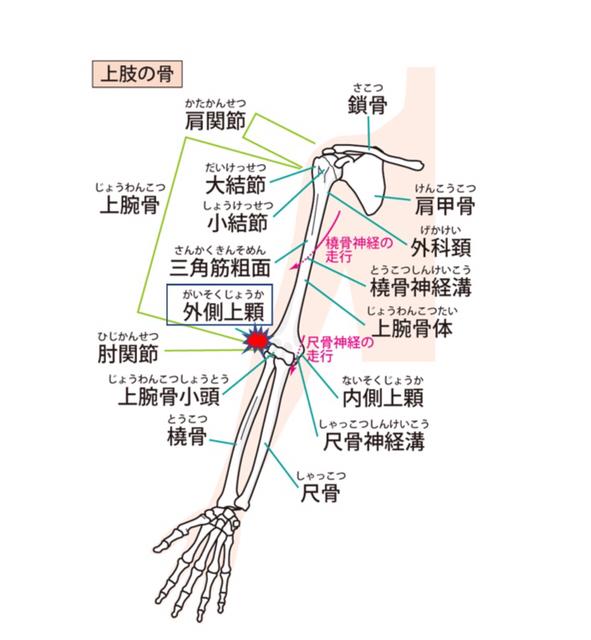 外側上顆の位置 肘の筋肉付着部にかかるストレスによって発生する外側上顆炎(テニス肘)