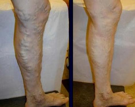 Antes y después del tratamiento