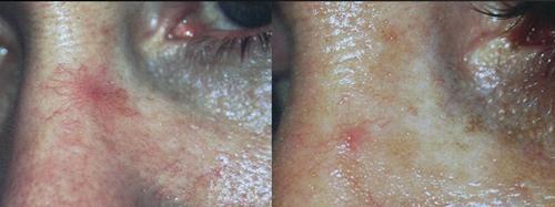 Antes y después. 1 sesión