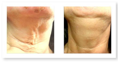 Lifting epidermico non chirurgico del viso e del corpo