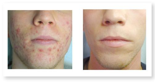 Cura dell'acne senza farmaci e in poche sedute
